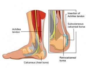 bursitis foot treatment