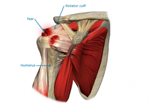 Rotator-Cuff-Injury
