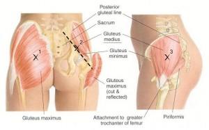 gluteal-tendinopathy-1
