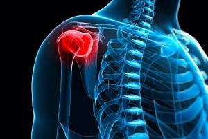 shoulder-bursitis