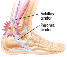 Ach_tendonitis